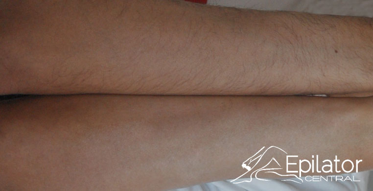 epilation results on arms