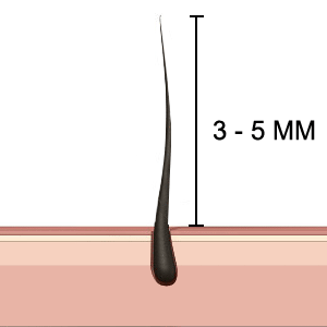 hair length for epilation