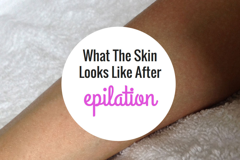 Epilator Tips - How To Guide For Using An Epilator